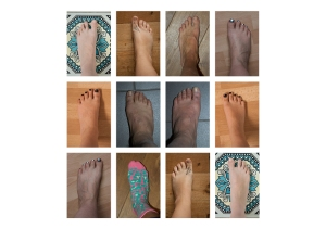 FEET-typology